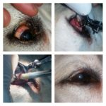 Before and after Meibomian Gland Adenoma treatment.